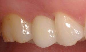 #implants #cerec #samedaycrowns #sirona #galileos #pattersondental #drjohnpatterson