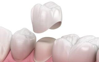 Dental Tooth Crown