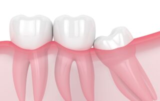 Wisdom Tooth Graphic